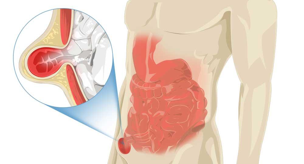 pain in lower abdomen